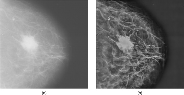 Example of synthetic imaging used in a mammogram to enhance the image.